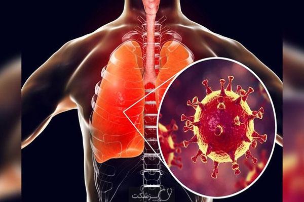 ایمنی در مقابل COVID-19 در افراد مبتلا به COVID-19 که بدون علامتند یا علایم ملایمی دارند